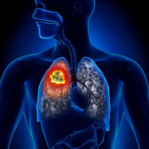 Asthma Bronchitis
