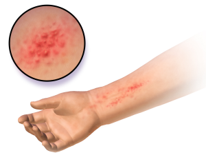 Eczema an Allergy