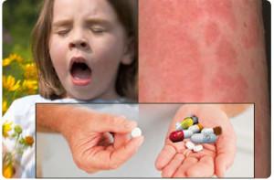 Allergy medicine
